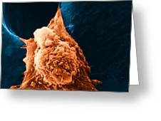 Metastasis Greeting Card by Science Source