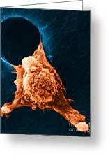 Metastasis Greeting Card by Science Source