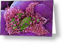 E. Coli Bacteria, Sem Greeting Card by Stephanie Schuller