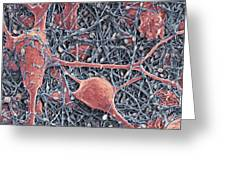 Nerve Cells And Glial Cells, Sem Greeting Card by Thomas Deerinck, Ncmir