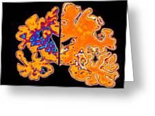 Artwork Of Alzheimer's Diseased Brain Vs Normal Greeting Card by Pasieka
