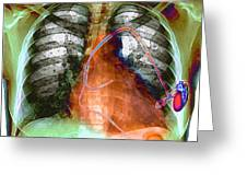 Heart Pacemaker, X-ray Greeting Card by Du Cane Medical Imaging Ltd
