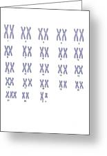 Male Down's Syndrome Karyotype, Artwork Greeting Card by Peter Gardiner