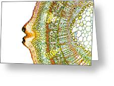 Plant Breathing Pore, Light Micrograph Greeting Card by Dr Keith Wheeler
