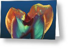 Polarised Lm Of A Molar Tooth Showing Decay Greeting Card by Volker Steger