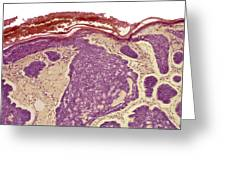 Skin Cancer, Light Micrograph Greeting Card by Steve Gschmeissner