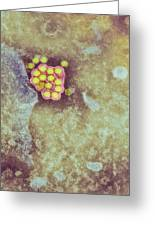 Yellow Fever Virus Particles, Tem Greeting Card by London School Of Hygiene & Tropical Medicine
