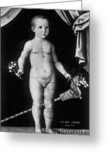 Young Felix Plater, Swiss Physician Greeting Card by Science Source
