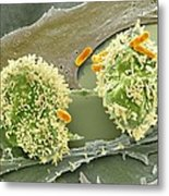 Dividing Cancer Cell, Sem Metal Print by Science Photo Library