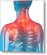 Shoulder Pain, Artwork Metal Print by Science Photo Library