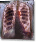 Aortic Aneurysm, X-ray Metal Print by