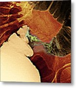 Colon Cancer, X-ray Metal Print by Du Cane Medical Imaging Ltd