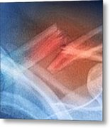 Fractured Collar Bone, X-ray Metal Print by Du Cane Medical Imaging Ltd