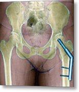 Fractured Femur Metal Print by Du Cane Medical Imaging Ltd
