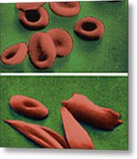 Normal And Sickle Red Blood Cells Metal Print by Omikron