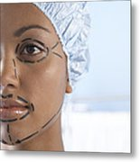Facelift Surgery Markings Metal Print by Adam Gault