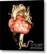 3d Cta Of Heart Metal Print by Medical Body Scans