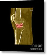 Knee Showing Osteoporosis Metal Print by Medical Body Scans