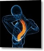 Back Pain, Conceptual Artwork Metal Print by Sciepro