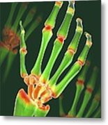 Arthritic Hand, X-ray Artwork Metal Print by David Mack
