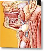 Artwork Of Mouth/neck: Tumour, Cyst, Duct Calculus Metal Print by John Bavosi