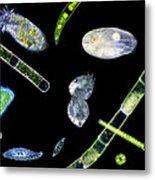 Ciliate Protozoa, Light Micrograph Metal Print by Laguna Design
