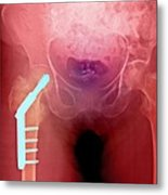 Fixed Hip And Fracture (image 1 Of 2) Metal Print by Du Cane Medical Imaging Ltd