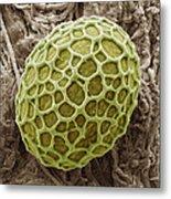 Freshwater Alga, Sem Metal Print by Steve Gschmeissner