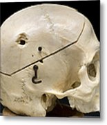 Gunshot Trauma To Skull, 1950s Metal Print by Science Source