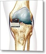 Partial Knee Replacement, Artwork Metal Print by D & L Graphics