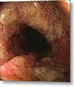 Ulcerative Colitis In The Sigmoid Colon Metal Print by Gastrolab