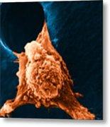 Metastasis Metal Print by Science Source