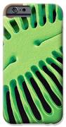 Diatom Frustule, Sem iPhone Case by Steve Gschmeissner