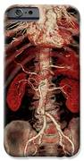 Aortic Aneurysm Ct Scan iPhone Case by Zephyr