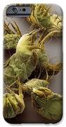 Sarcoptic Mange Mites, Sem iPhone Case by Steve Gschmeissner