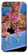 Used Dental Floss, Sem iPhone Case by Steve Gschmeissner