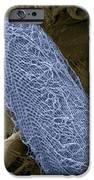 Ciliate Protozoan, Sem IPhone Case by Steve Gschmeissner
