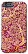Thyroid Gland Blood Vessels, Sem IPhone Case by Susumu Nishinaga