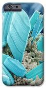 Diatoms, Sem IPhone Case by Susumu Nishinaga