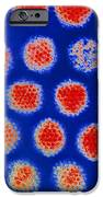 Adenoviruses IPhone Case by P. Hawtin, University Of Southampton
