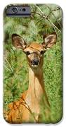 Being Watched IPhone Case by Ernie Echols