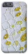 Diatoms, Light Micrograph IPhone Case by Frank Fox