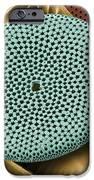 Diatoms, Sem IPhone Case by Steve Gschmeissner