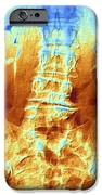 False-col X-ray Of Lumbar Spine Of Woman IPhone Case by Pasieka