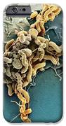 Helicobacter Pylori Bacteria, Sem IPhone Case by
