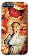 Schizophrenia IPhone Case by Tim Vernon, Lth Nhs Trust