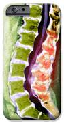 Spine Degeneration, Mri Scan IPhone Case by Du Cane Medical Imaging Ltd