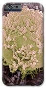 Colorectal Cancer Cell IPhone Case by Steve Gschmeissner