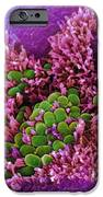 E. Coli Bacteria, Sem IPhone Case by Stephanie Schuller