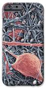 Nerve Cells And Glial Cells, Sem IPhone Case by Thomas Deerinck, Ncmir